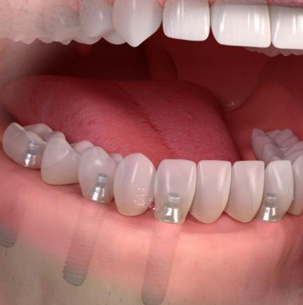implantes-fijos