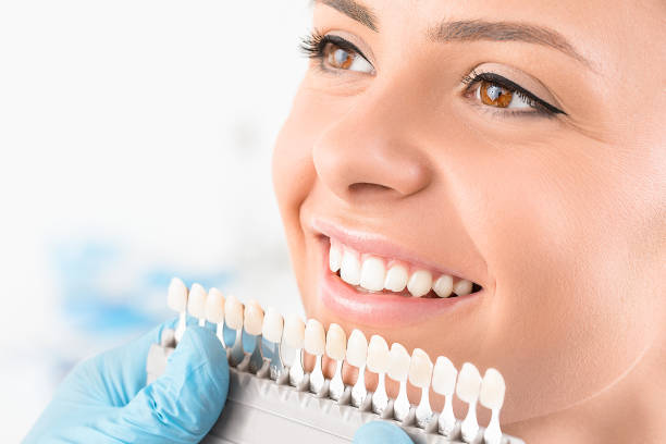 blanqueamiento dental domiciliario