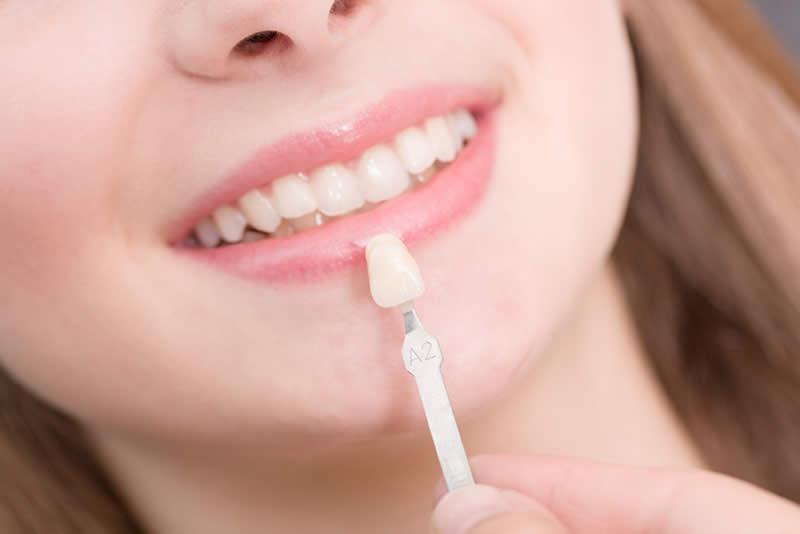 carillas dentales miradent